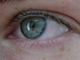 oční víčko před zákrokem