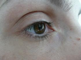 oční víčko před